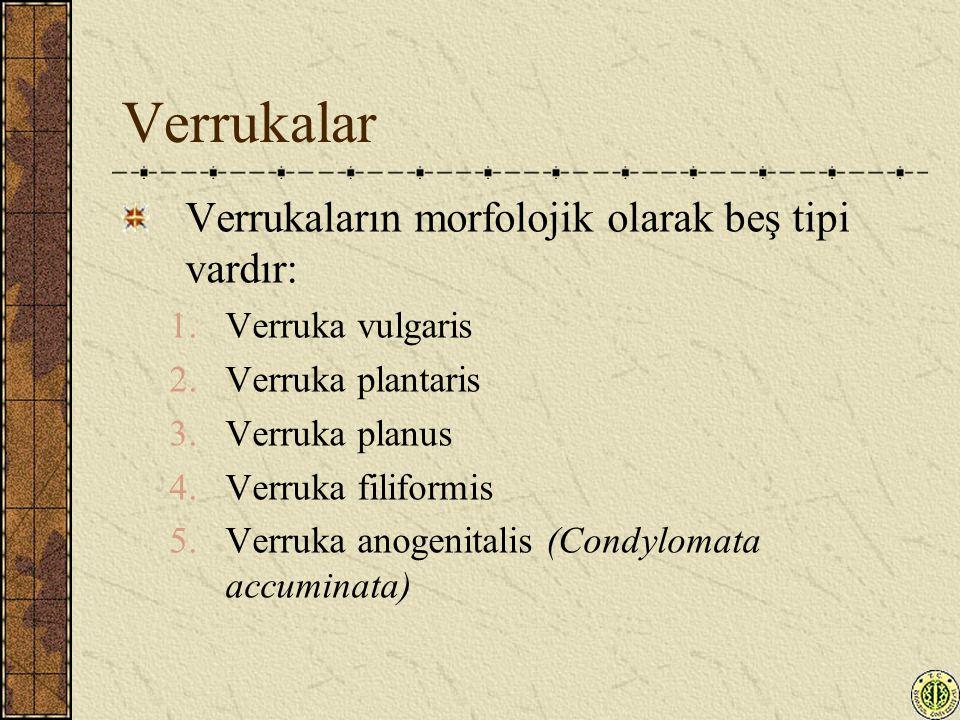 Verrukalar Verrukaların morfolojik olarak beş tipi vardır: