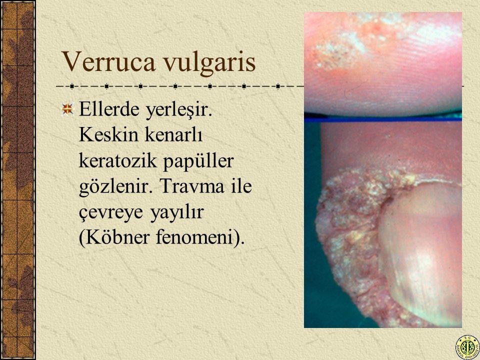 Verruca vulgaris Ellerde yerleşir. Keskin kenarlı keratozik papüller gözlenir.