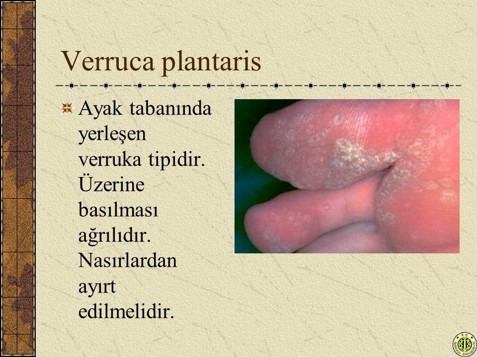 Verruca plantaris Ayak tabanında yerleşen verruka tipidir.