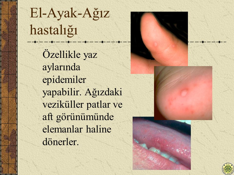 El-Ayak-Ağız hastalığı