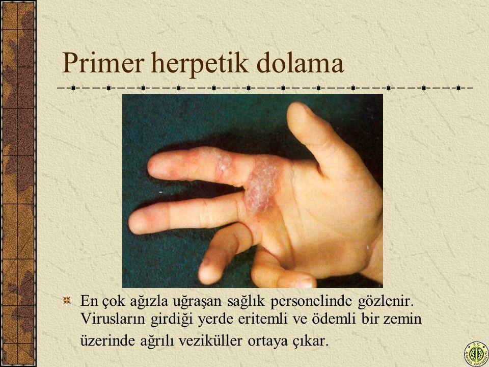 Primer herpetik dolama