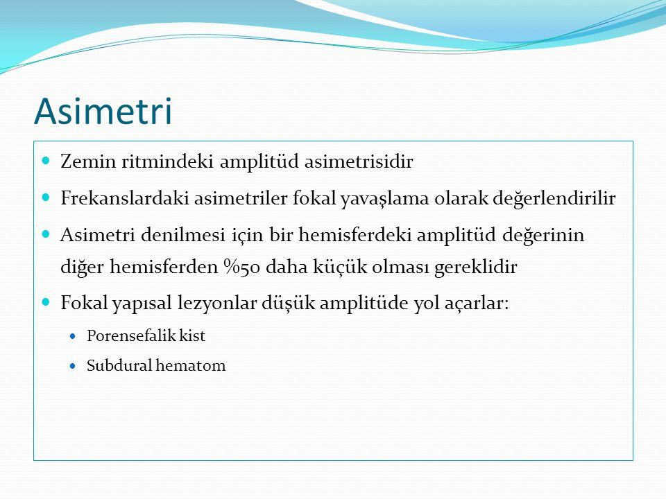 Asimetri Zemin ritmindeki amplitüd asimetrisidir