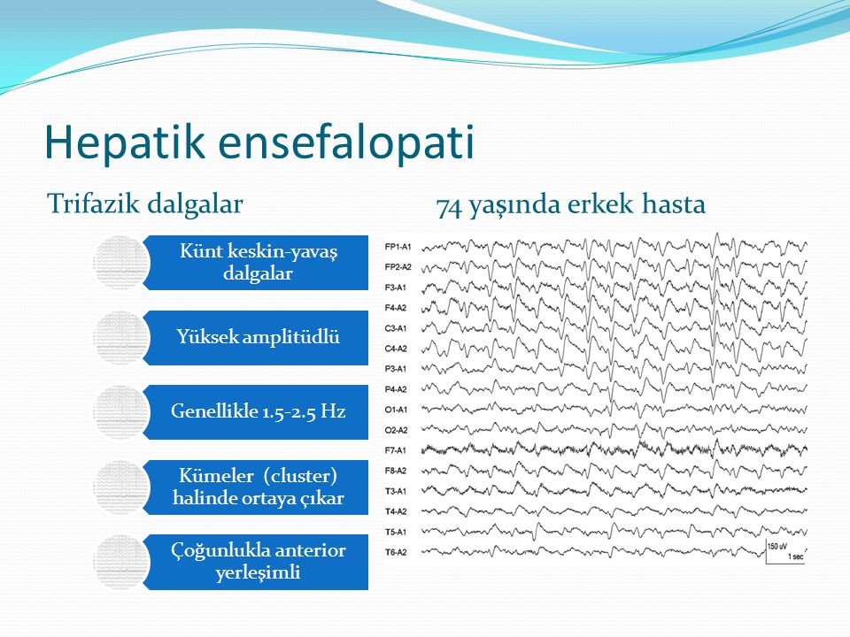 Hepatik ensefalopati Trifazik dalgalar 74 yaşında erkek hasta