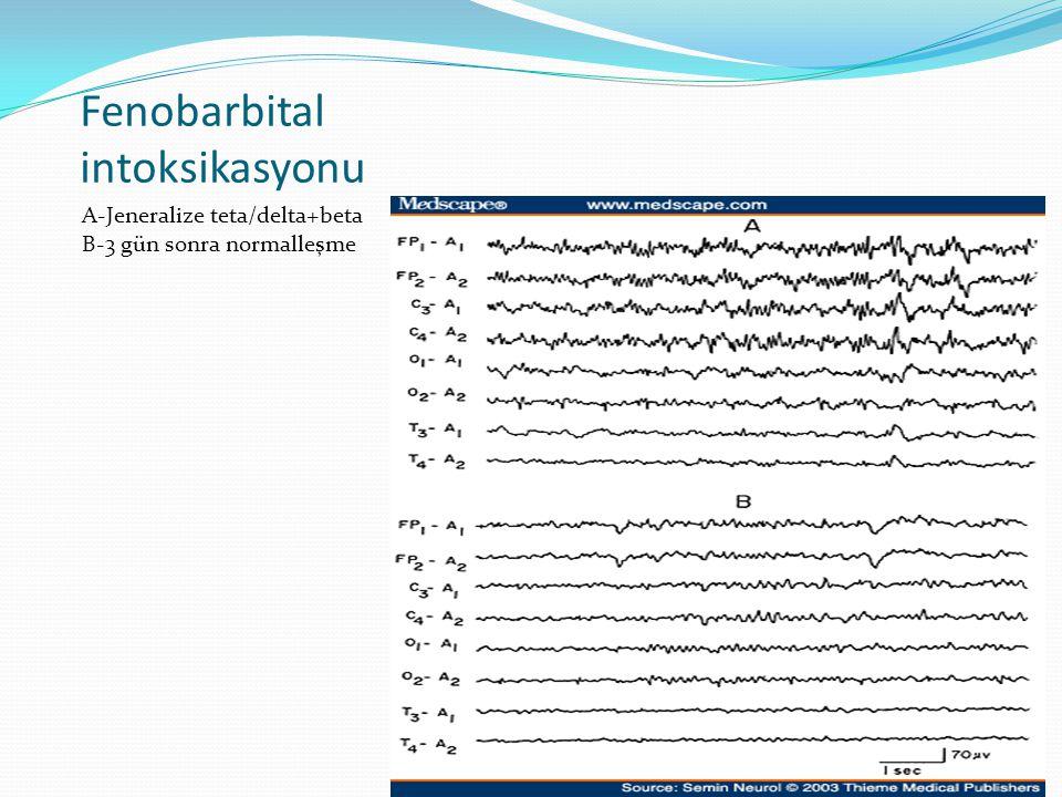 Fenobarbital intoksikasyonu