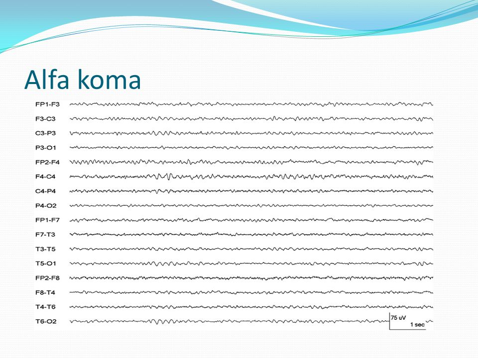 Alfa koma FIGURE 7. An alpha coma pattern in a 68-year-old man postcardiorespiratory arrest.