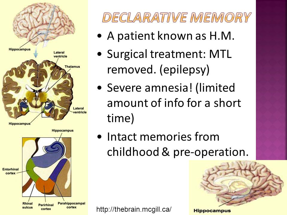 Declarative Memory A patient known as H.M.
