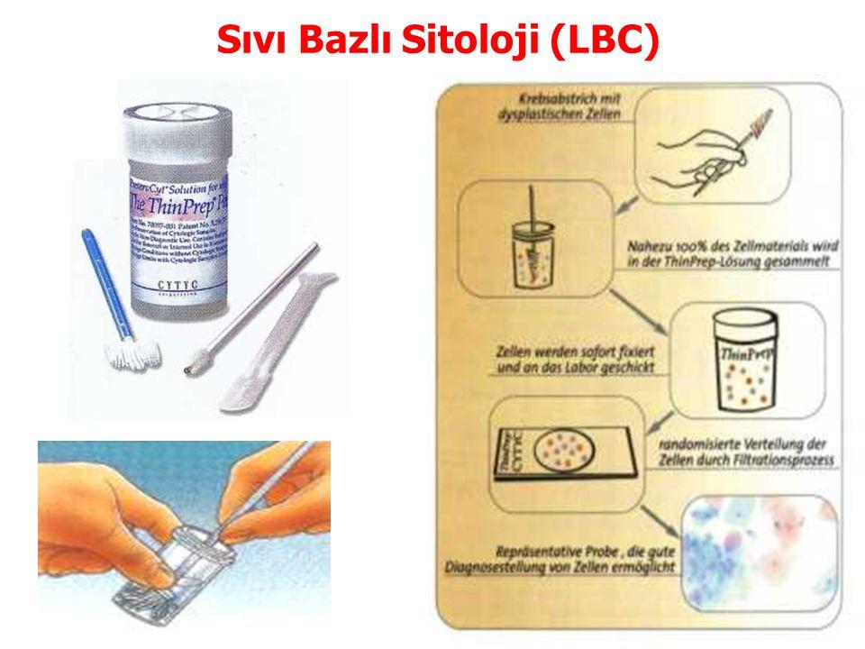Sıvı Bazlı Sitoloji (LBC)