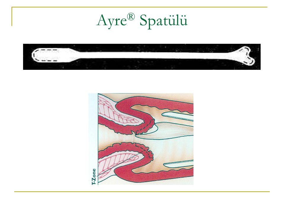 Ayre® Spatülü