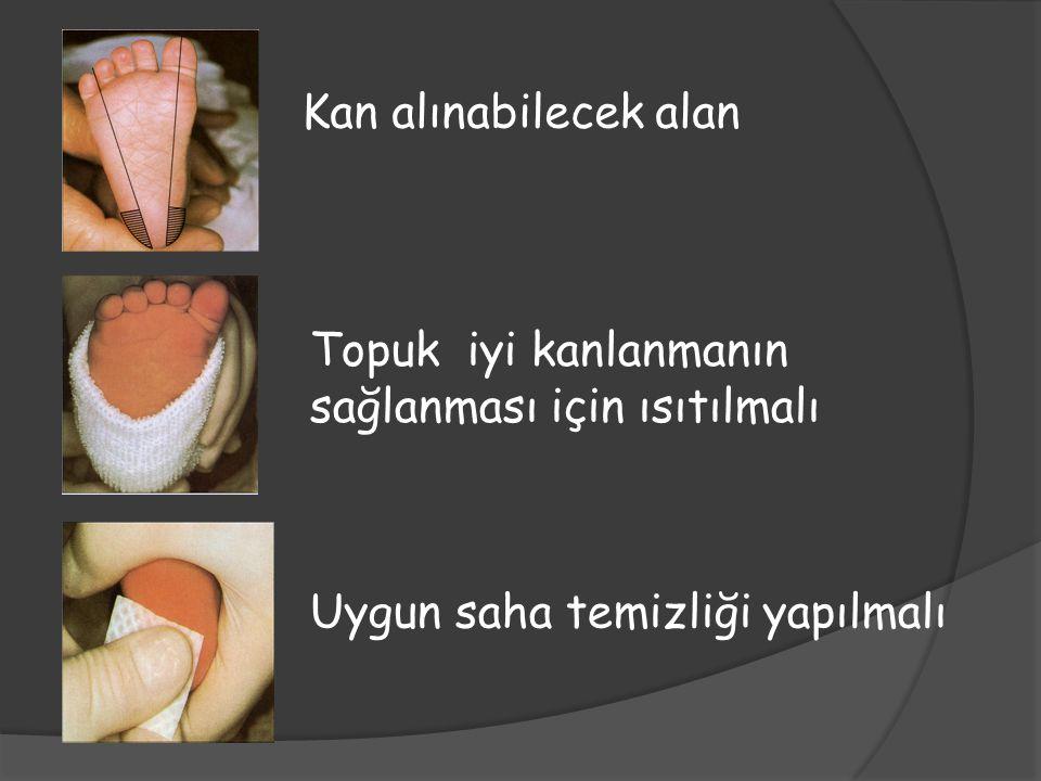 Kan alınabilecek alan Topuk iyi kanlanmanın sağlanması için ısıtılmalı.