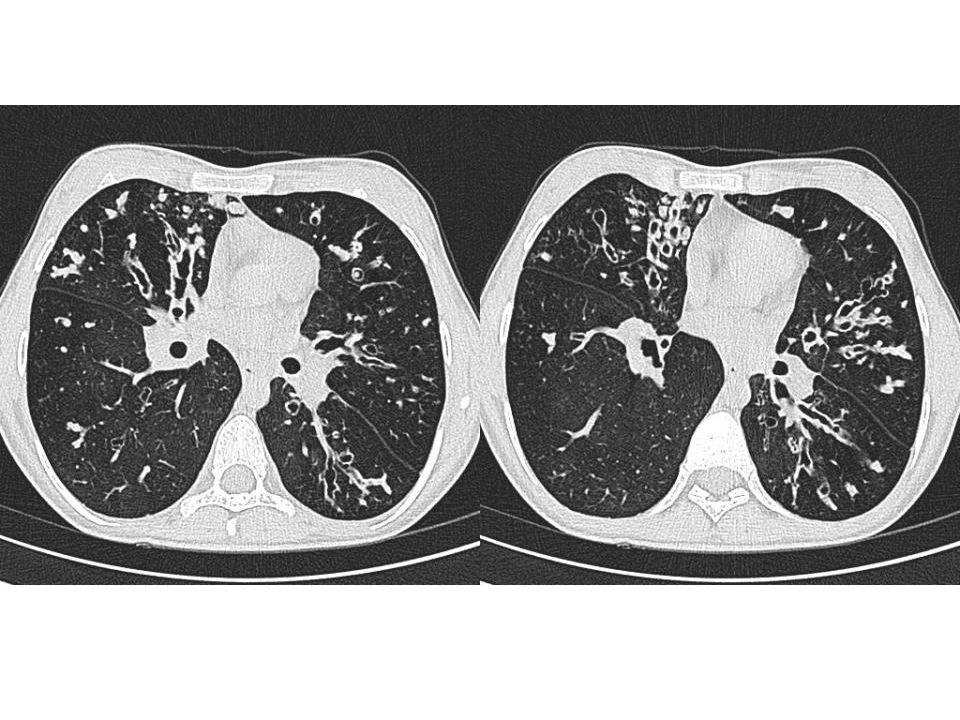 Varikoz bronşektazi 21