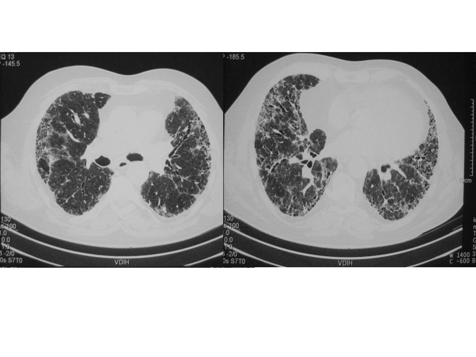 Traksiyon bronşektazisi (fibrozis)