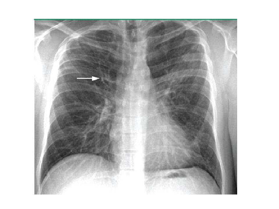 PA akciğer grafide allerjik bronkopulmoner aspergillomaya bağlı sağ üst lob hava yolunda dilatasyon ve duvar kalınlaşması (ok) görülüyor.
