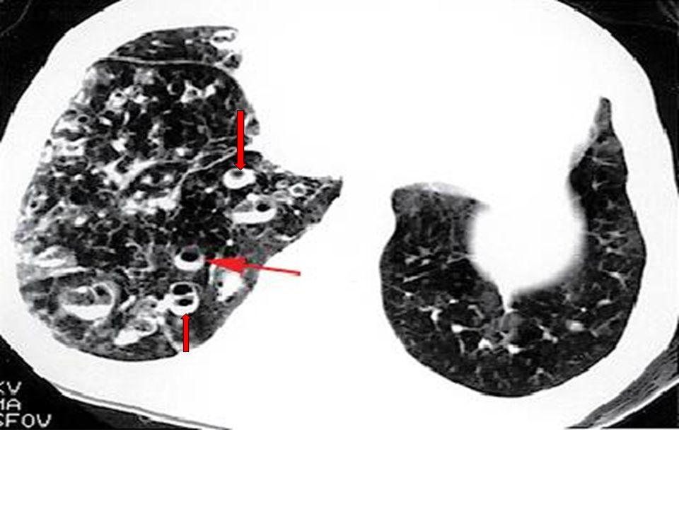 Sağ akciğerde çok sayıda dilate hava yolları ve bir çoğunda parsiyel olarak sekresyonlar görülmekte (oklar)