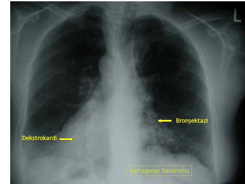 Bronşektazi Dekstrokardi Kartagener Sendromu 29