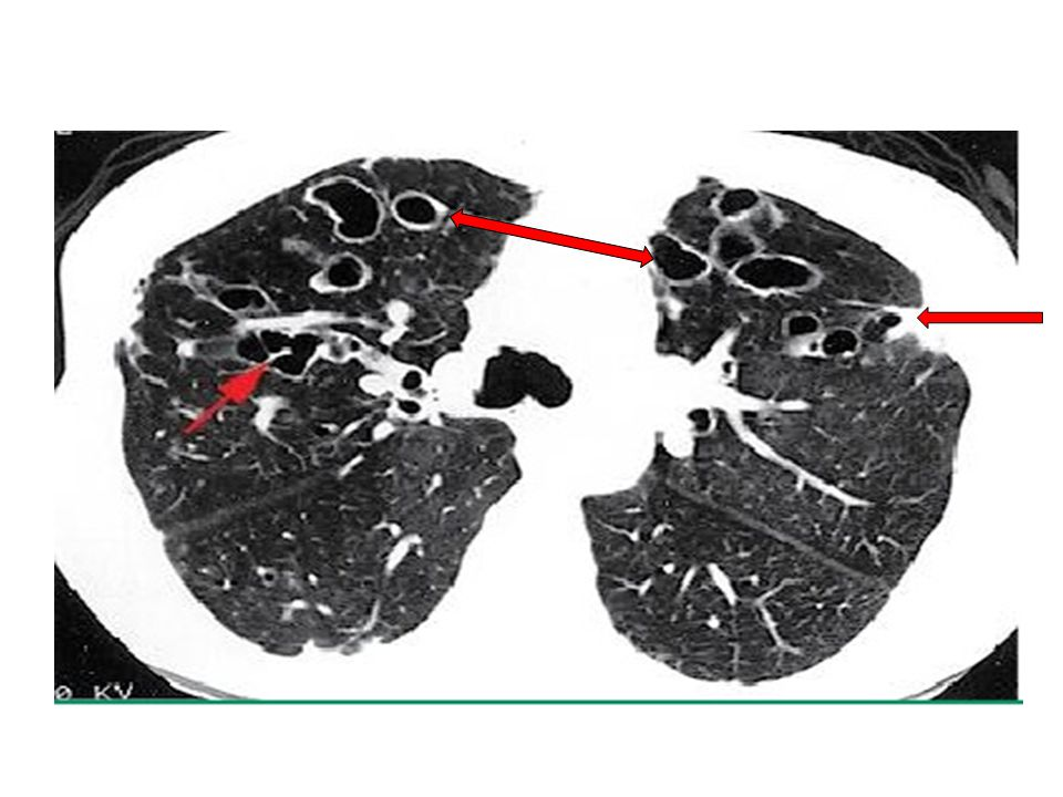 Belirgin hava yolları dilatasyonuyla birlikte bronşektazi, Her iki akciğer üst loblarda belirgin dilate hava yolu kümelenmeleri görülüyor (oklar)