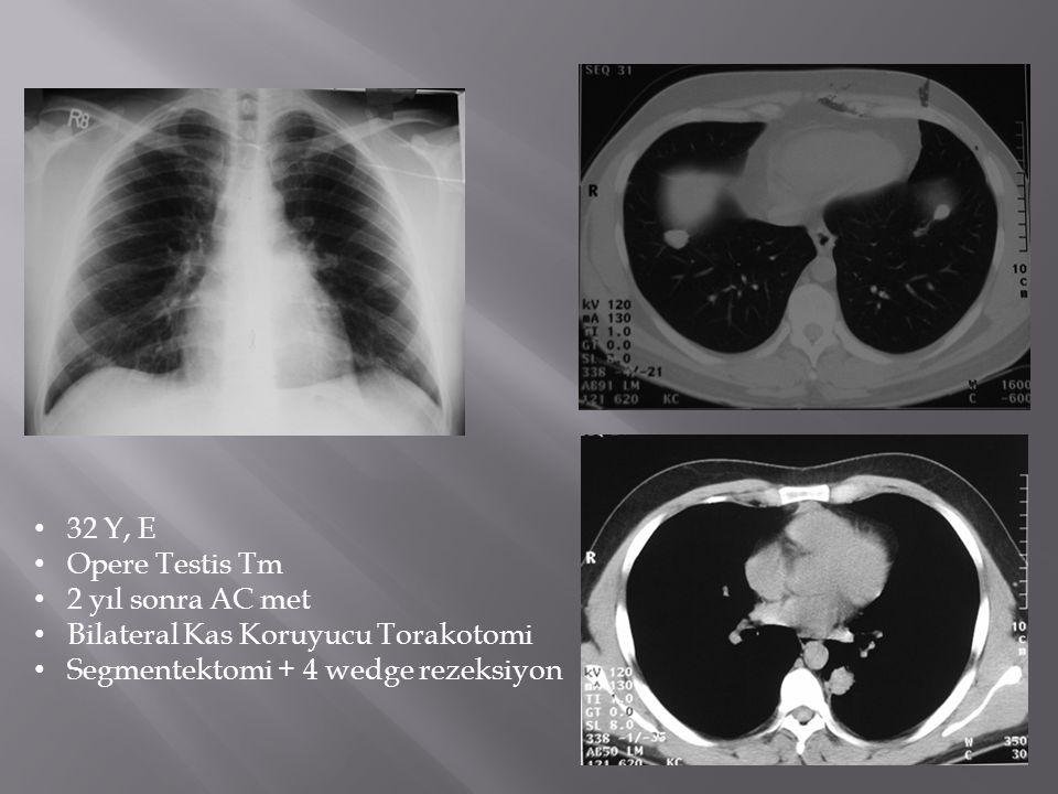 32 Y, E Opere Testis Tm. 2 yıl sonra AC met. Bilateral Kas Koruyucu Torakotomi.