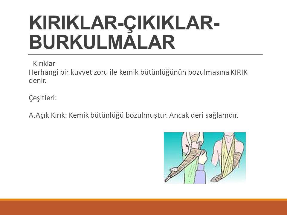 KIRIKLAR-ÇIKIKLAR-BURKULMALAR