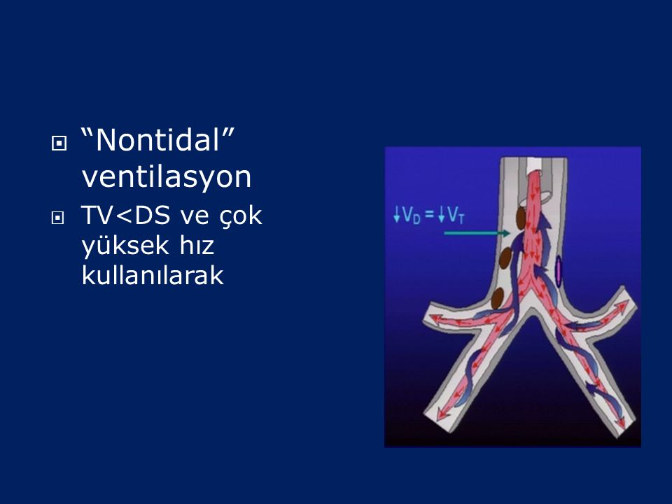 Nontidal ventilasyon