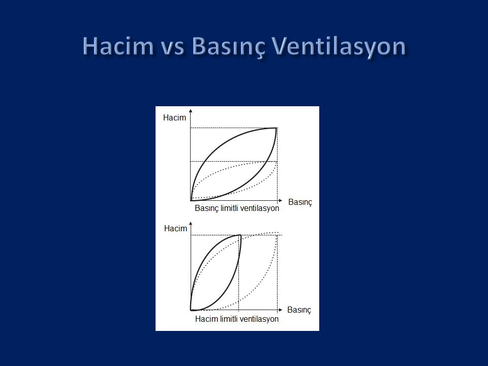 Hacim vs Basınç Ventilasyon