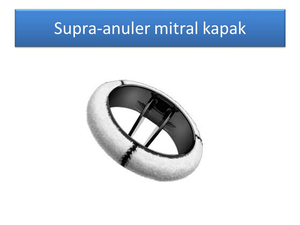 Supra-anuler mitral kapak