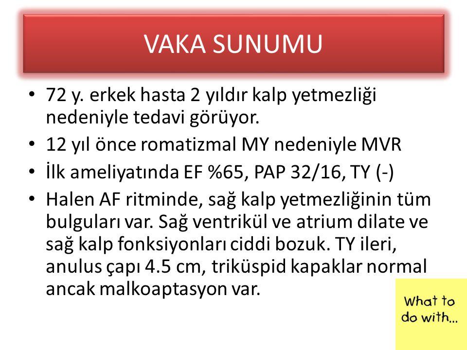 VAKA SUNUMU 72 y. erkek hasta 2 yıldır kalp yetmezliği nedeniyle tedavi görüyor. 12 yıl önce romatizmal MY nedeniyle MVR.