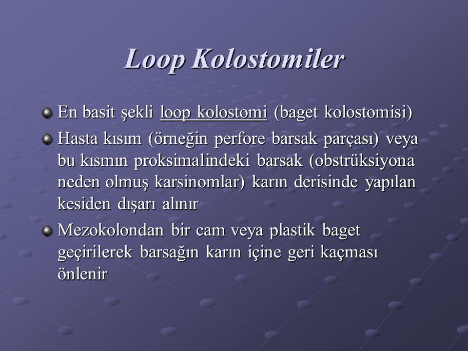Loop Kolostomiler En basit şekli loop kolostomi (baget kolostomisi)