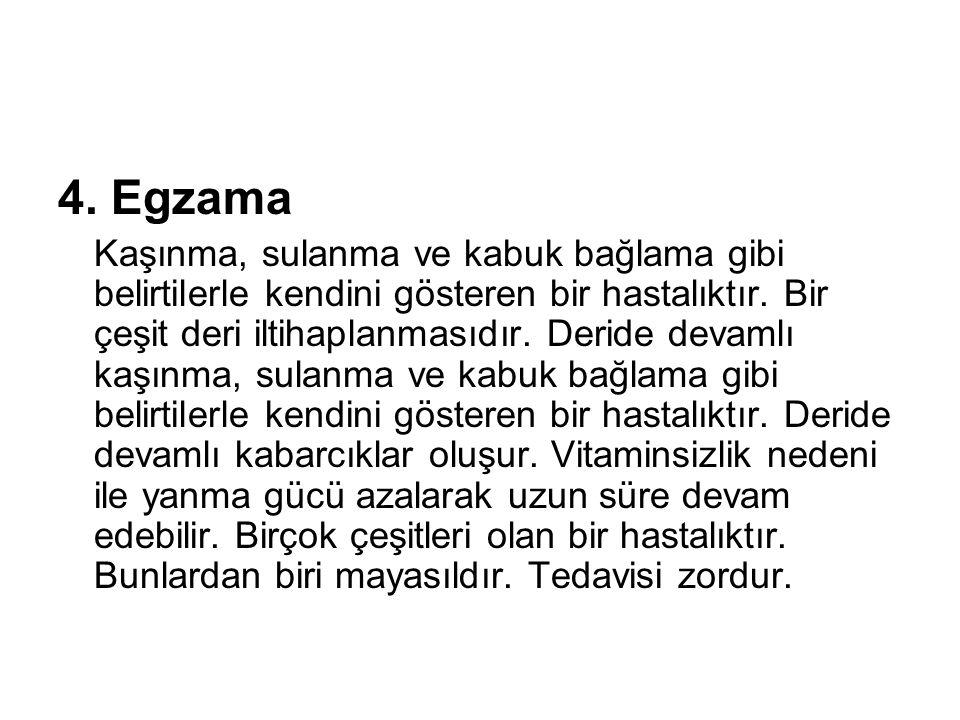 4. Egzama