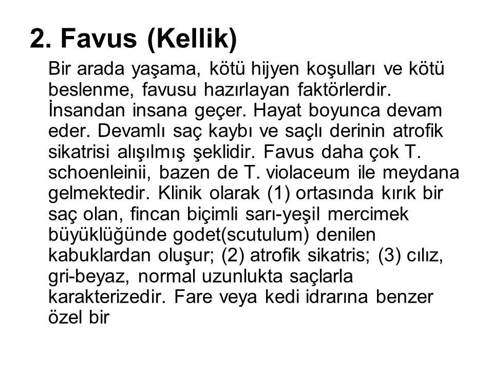 2. Favus (Kellik)