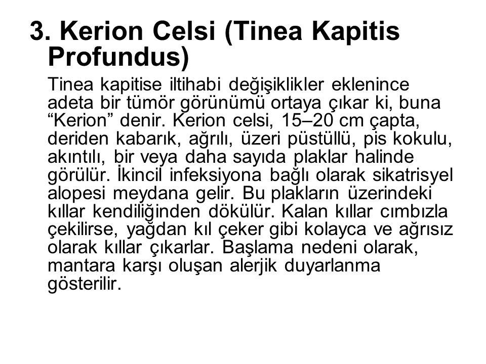 3. Kerion Celsi (Tinea Kapitis Profundus)