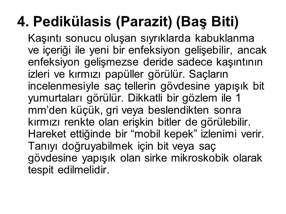 4. Pedikülasis (Parazit) (Baş Biti)
