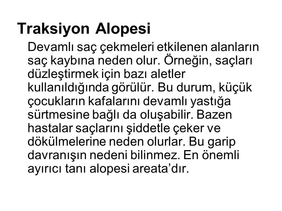 Traksiyon Alopesi