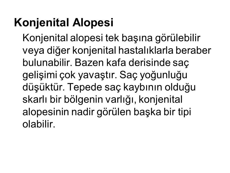 Konjenital Alopesi