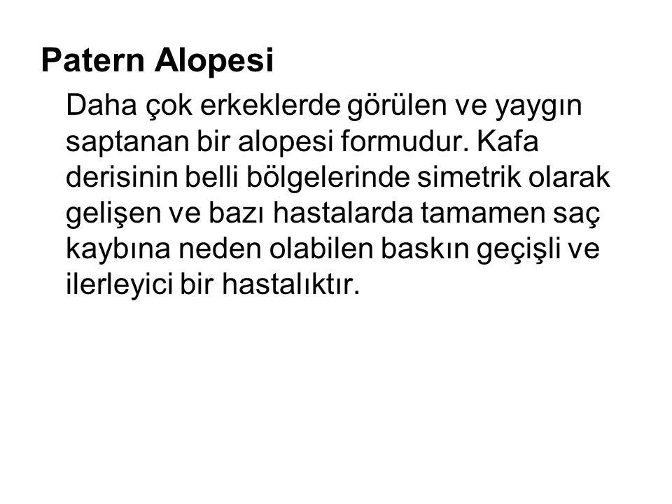 Patern Alopesi