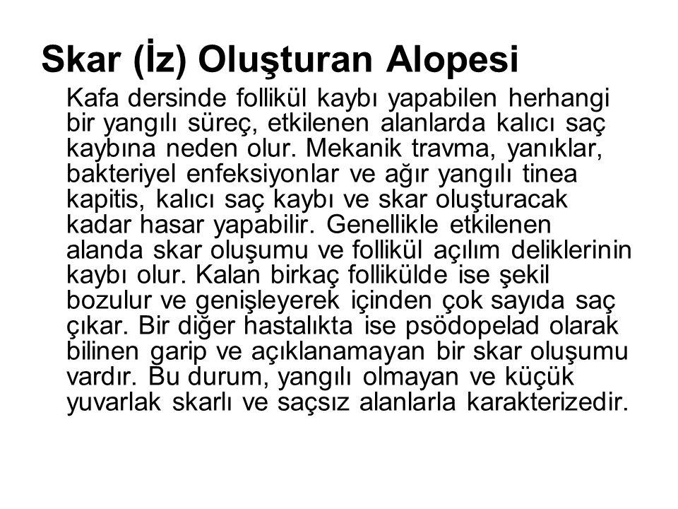 Skar (İz) Oluşturan Alopesi