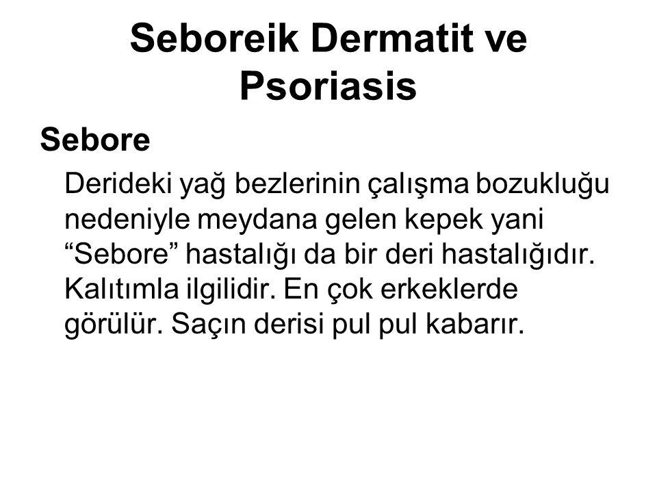 Seboreik Dermatit ve Psoriasis