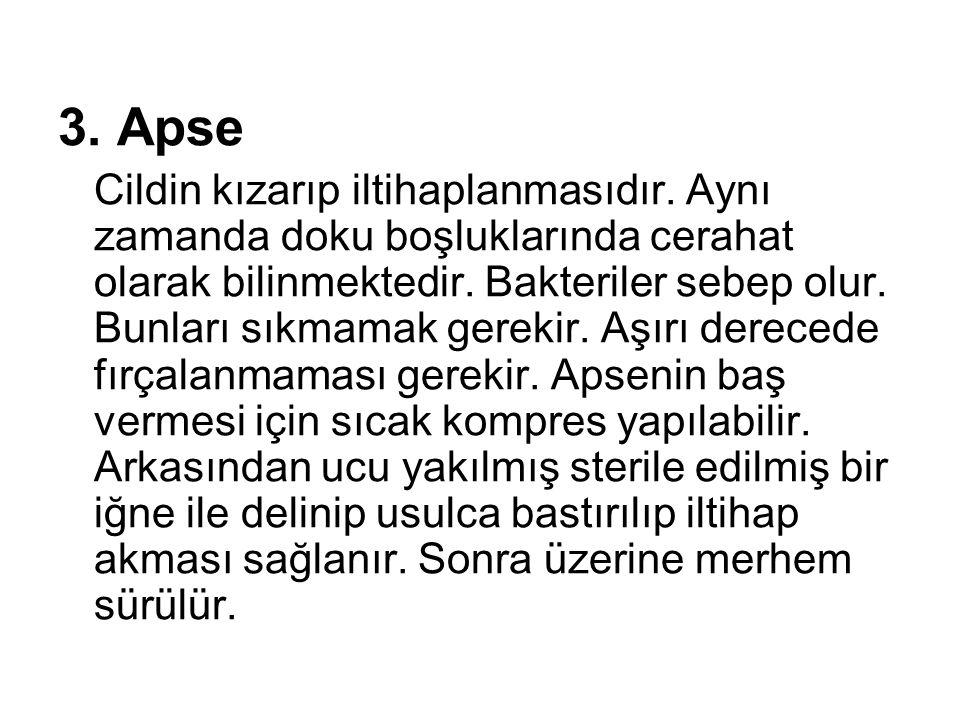 3. Apse