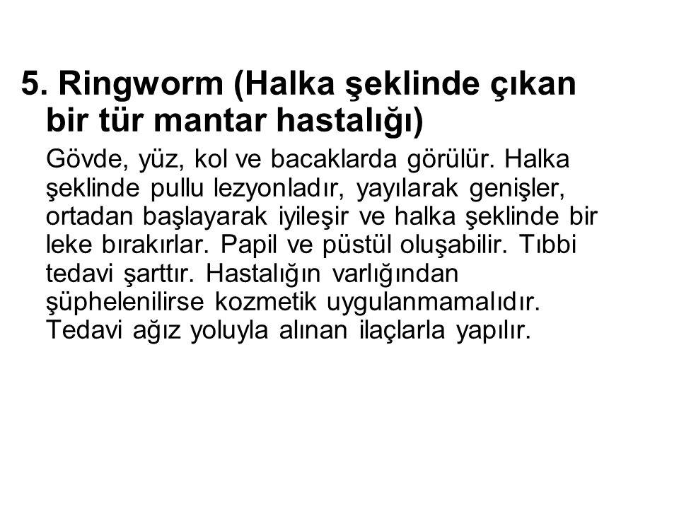 5. Ringworm (Halka şeklinde çıkan bir tür mantar hastalığı)