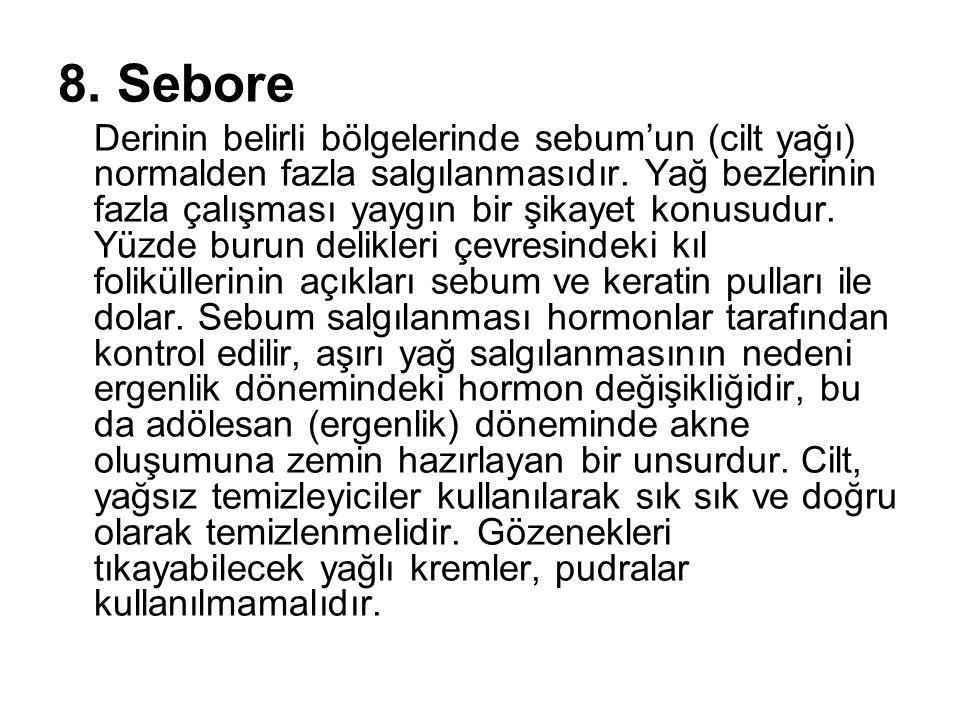 8. Sebore