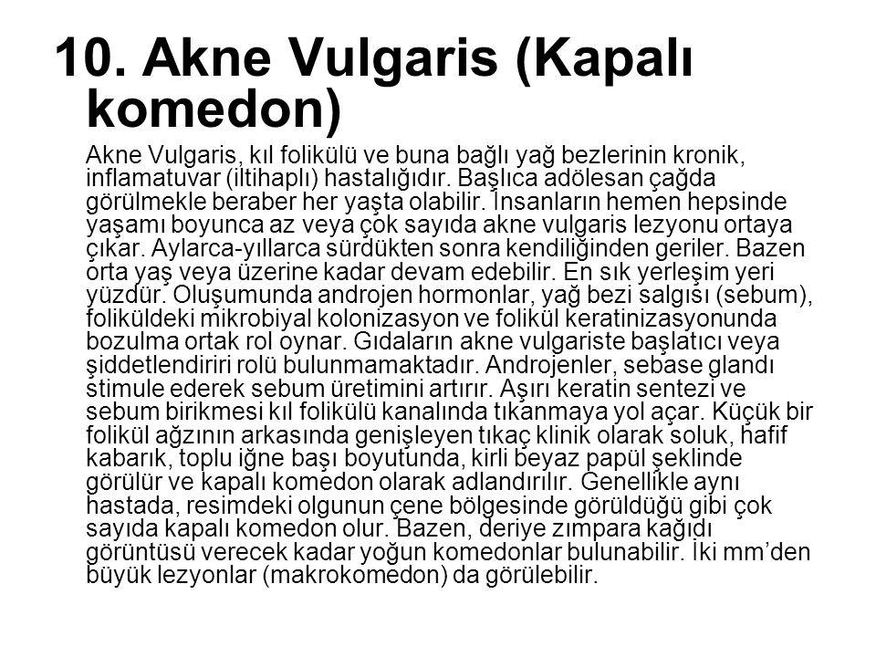 10. Akne Vulgaris (Kapalı komedon)