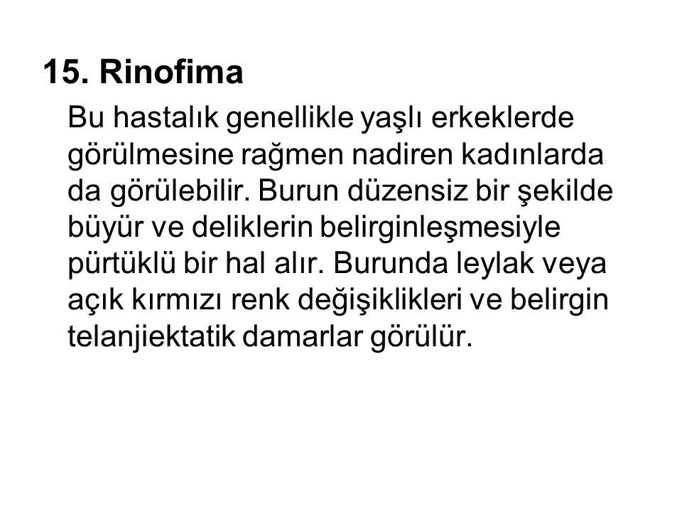 15. Rinofima