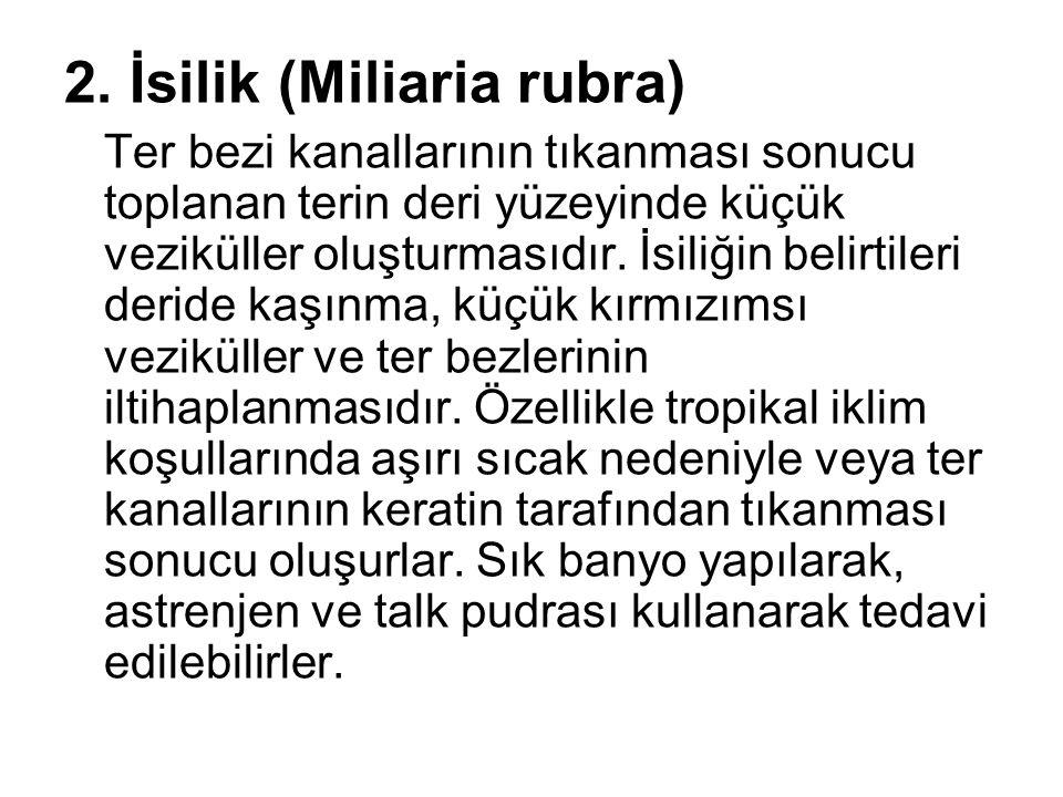2. İsilik (Miliaria rubra)