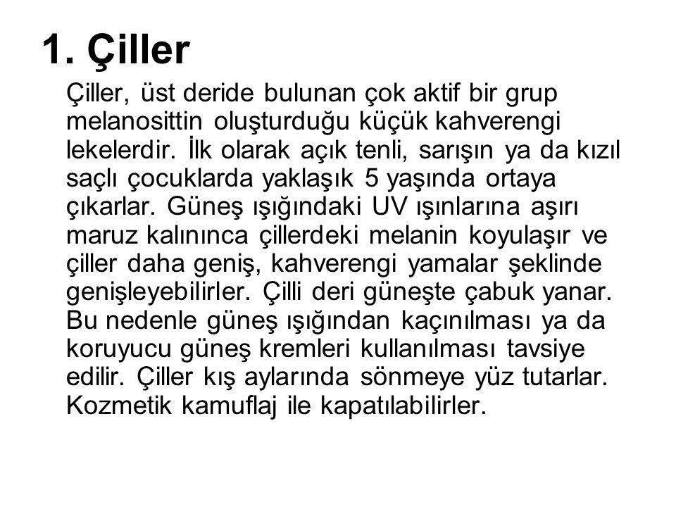 1. Çiller