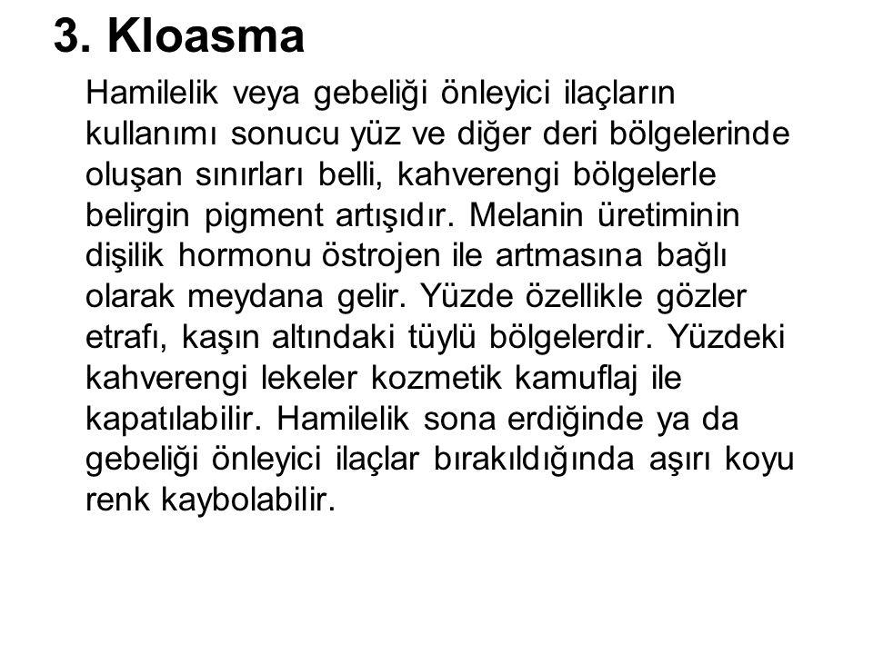 3. Kloasma