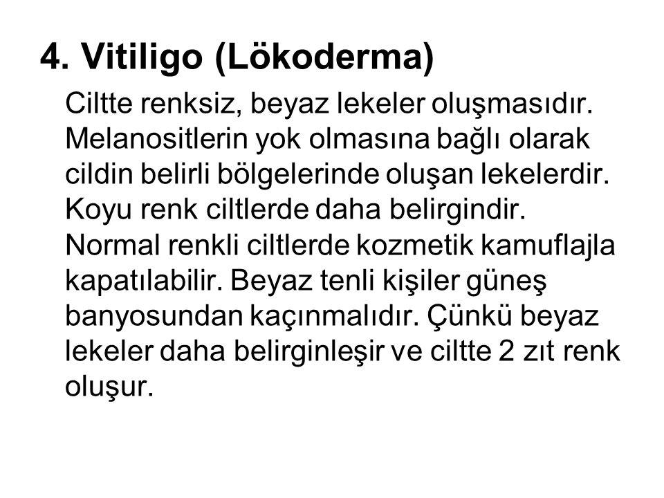 4. Vitiligo (Lökoderma)