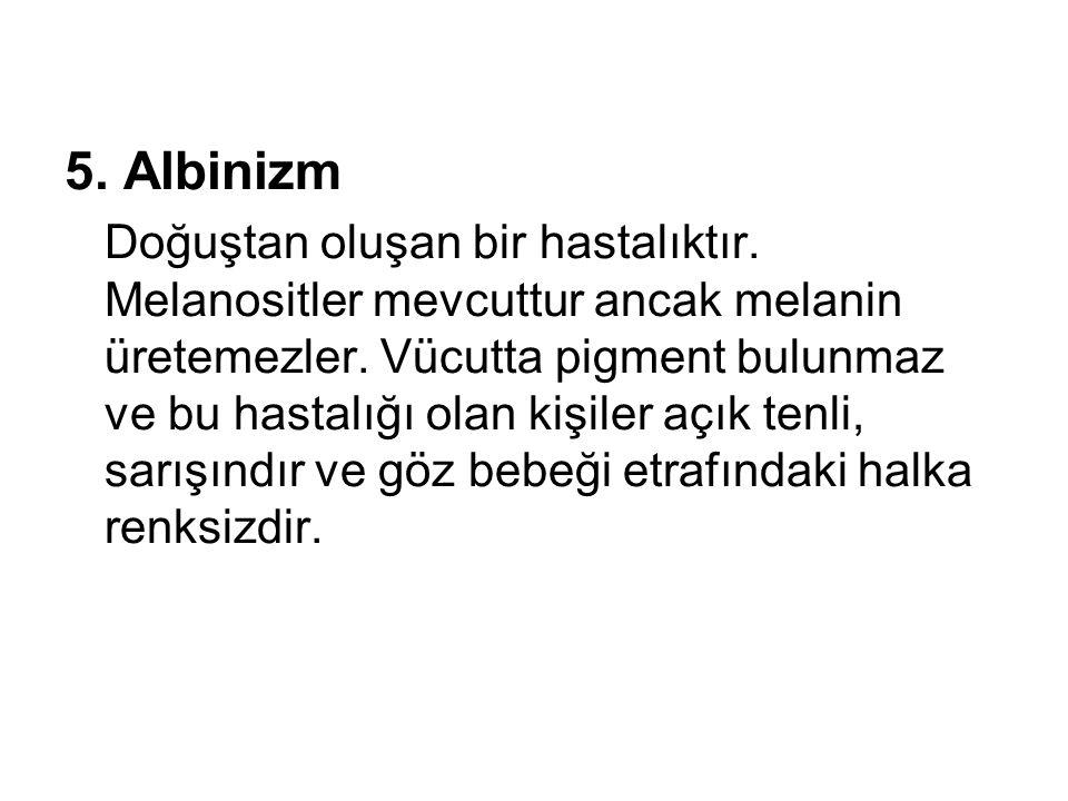 5. Albinizm