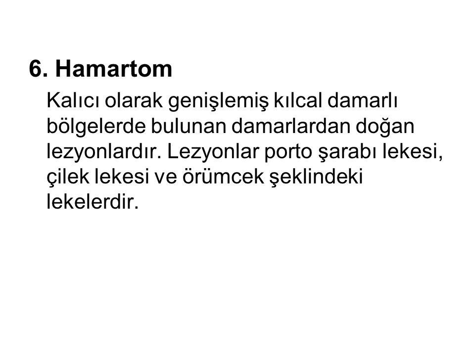 6. Hamartom