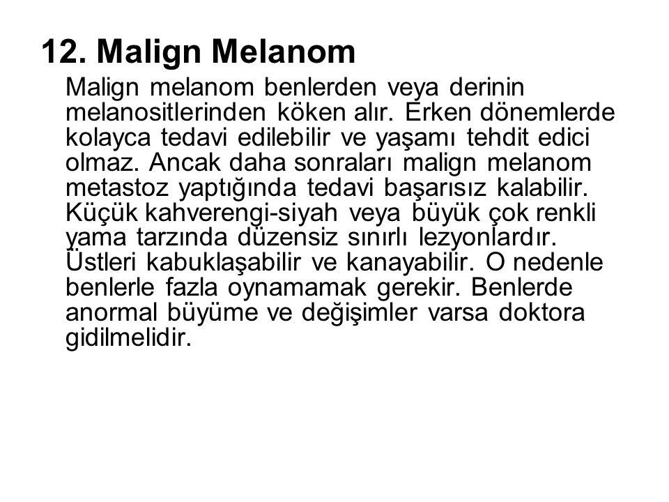 12. Malign Melanom