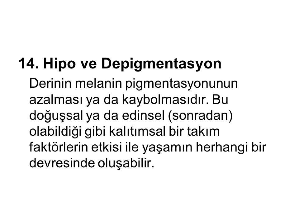 14. Hipo ve Depigmentasyon