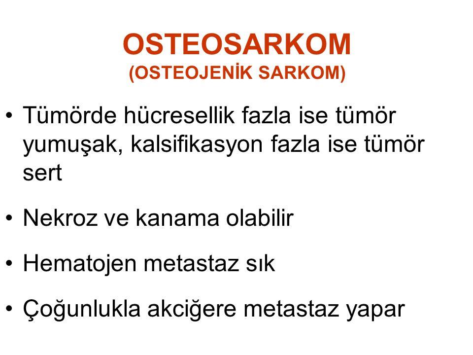 OSTEOSARKOM (OSTEOJENİK SARKOM)