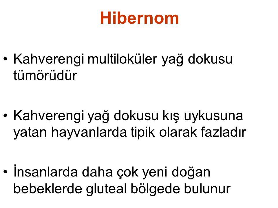 Hibernom Kahverengi multiloküler yağ dokusu tümörüdür